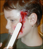 Using Gelatin for Burns & Scars